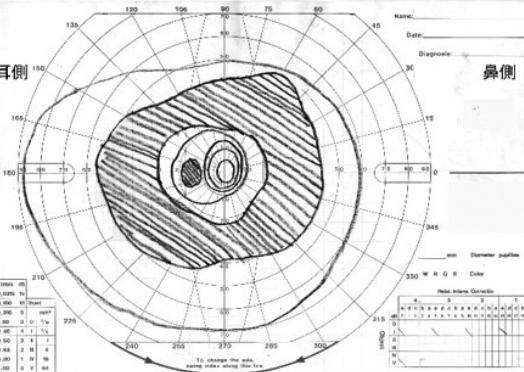 輪状暗点の視野検査