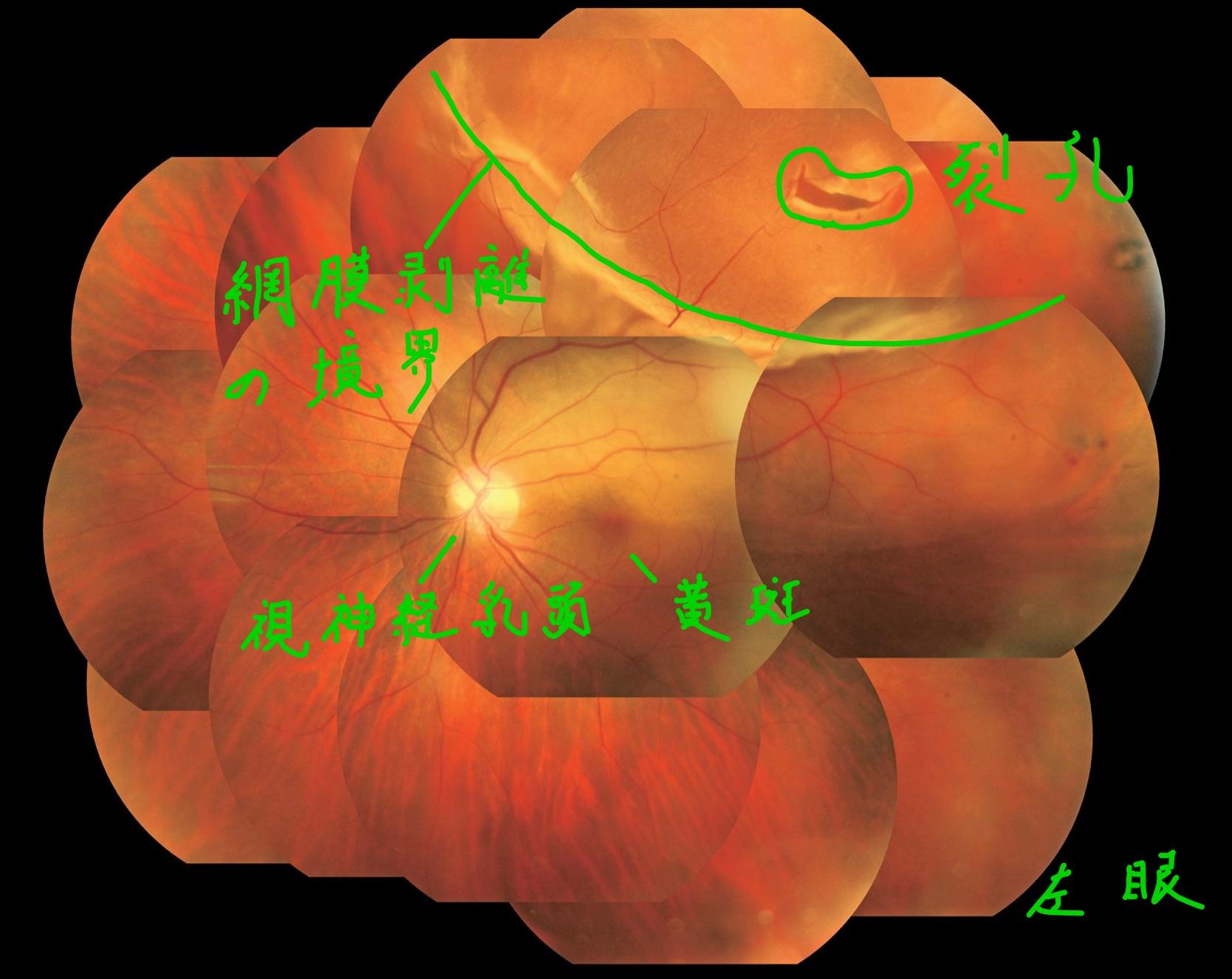 医師国家試験110A57_画像_裂孔原性網膜剥離の眼底写真_改変