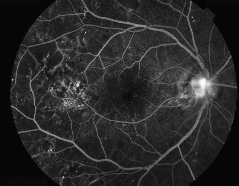 医師国家試験108C24_画像B_糖尿病網膜症の造影写真