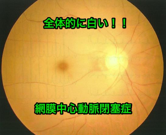 網膜中心動脈閉塞症の画像