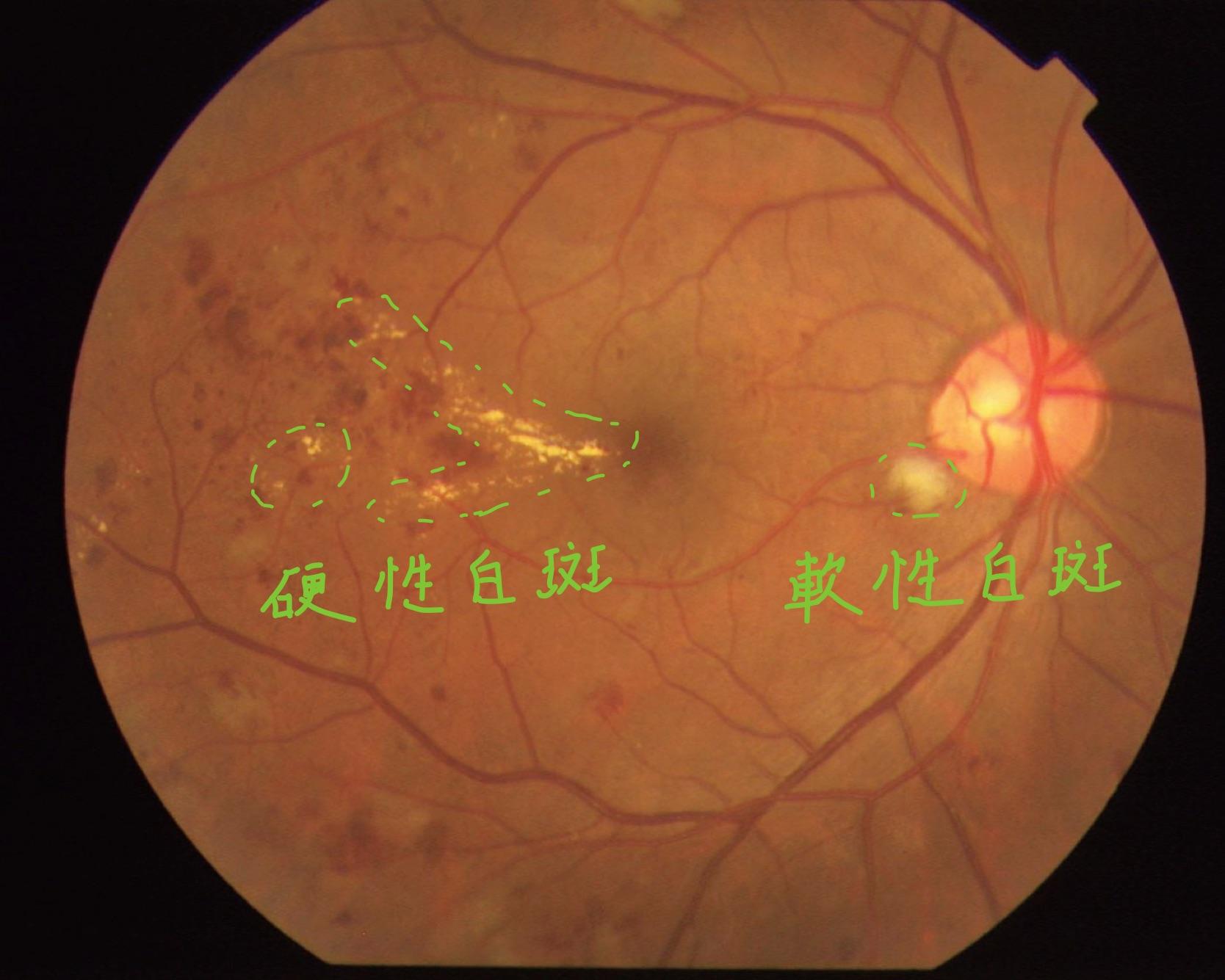 医師国家試験108C24画像A_糖尿病網膜症(軟性白斑)の眼底写真_改変