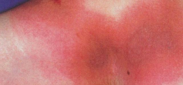 固定薬疹で貼付試験(パッチテスト)を行う理由