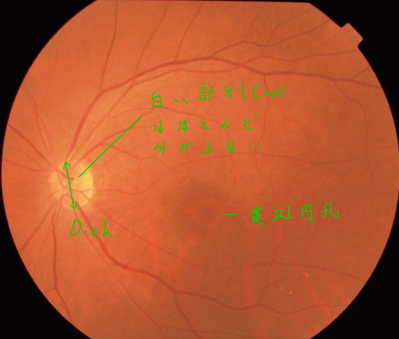 医師国家試験108D38_画像_黄斑円孔の眼底写真_視神経乳頭は正常