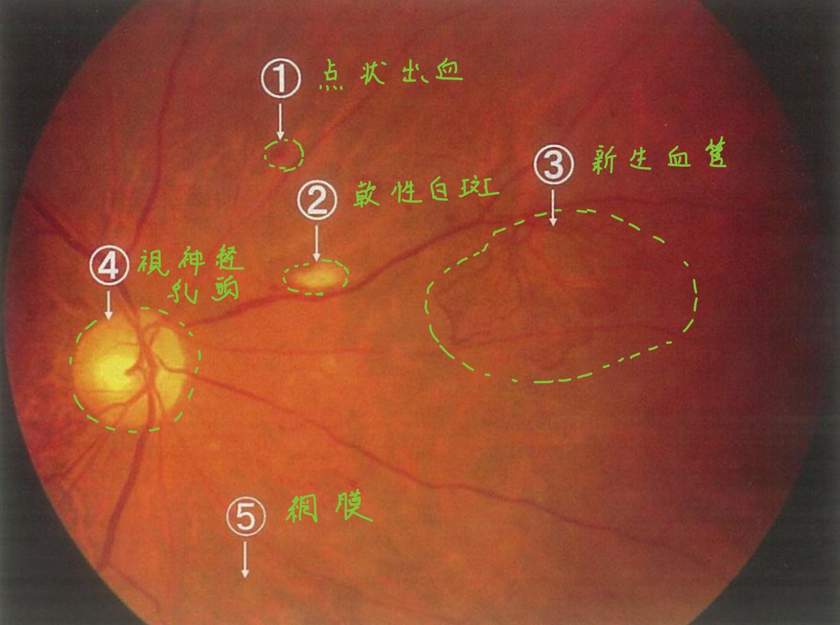 医師国家試験102A39_画像_糖尿病網膜症の眼底写真_改変(各病変の名称)