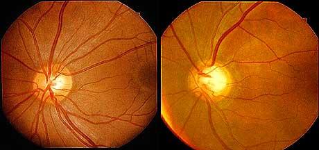 緑内障の眼底