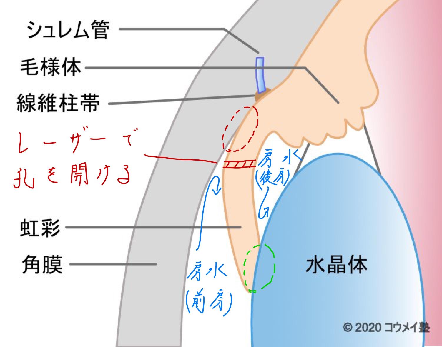 急性緑内障発作_レーザー治療