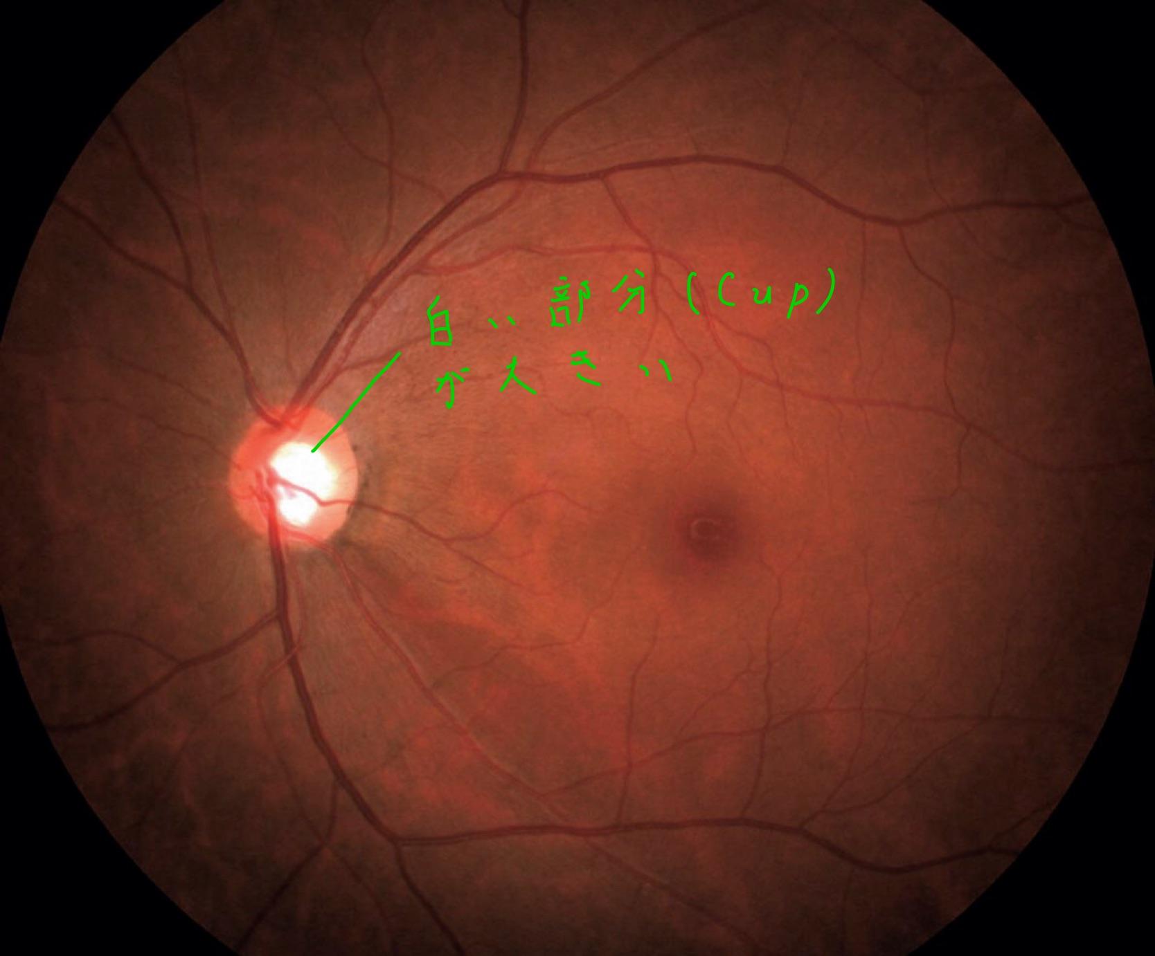 医師国家試験107A55_画像A_緑内障の眼底写真_Cupの拡大