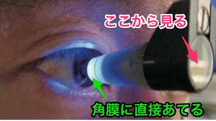 直接眼圧測定