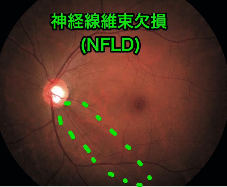 神経線維束欠損(NFLD)