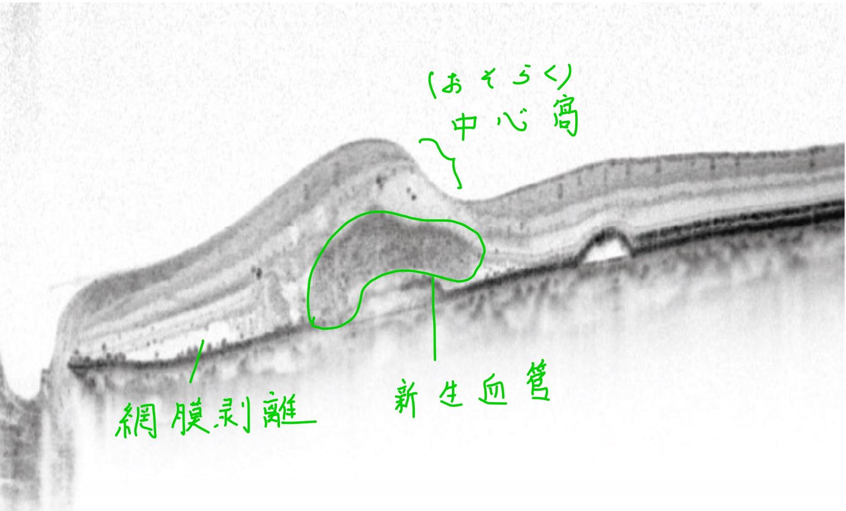 医師国家試験112C31_画像B_加齢黄斑変性のOCT_改変