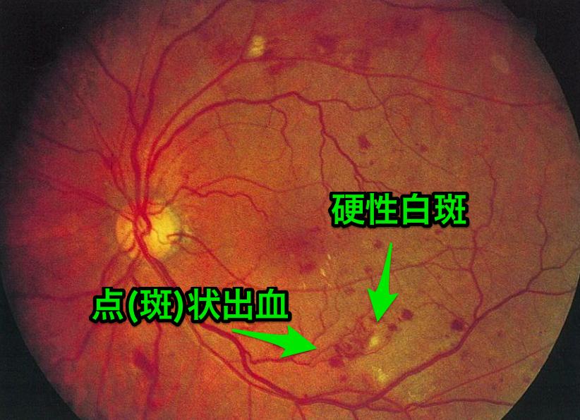 単純糖尿病網膜症の画像