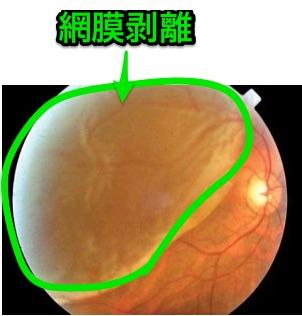 網膜剥離の眼底