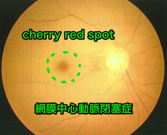 医師国家試験104G54_画像A_網膜中心動脈閉塞症の眼底写真_改変(cherry red spot)