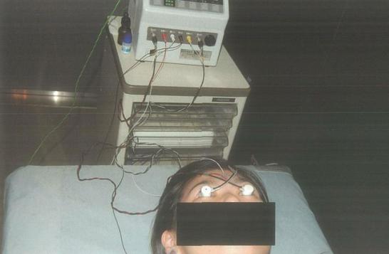医師国家試験103E6_画像_網膜電図(ERG)