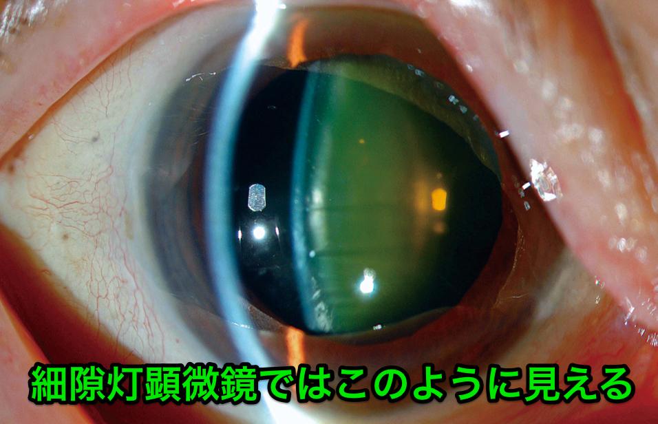 細隙灯顕微鏡での見え方