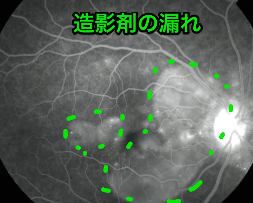 原田病の造影写真