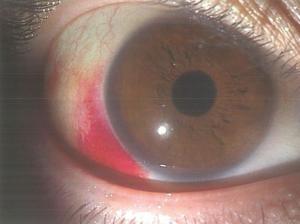 医師国家試験103A30_画像_結膜下出血