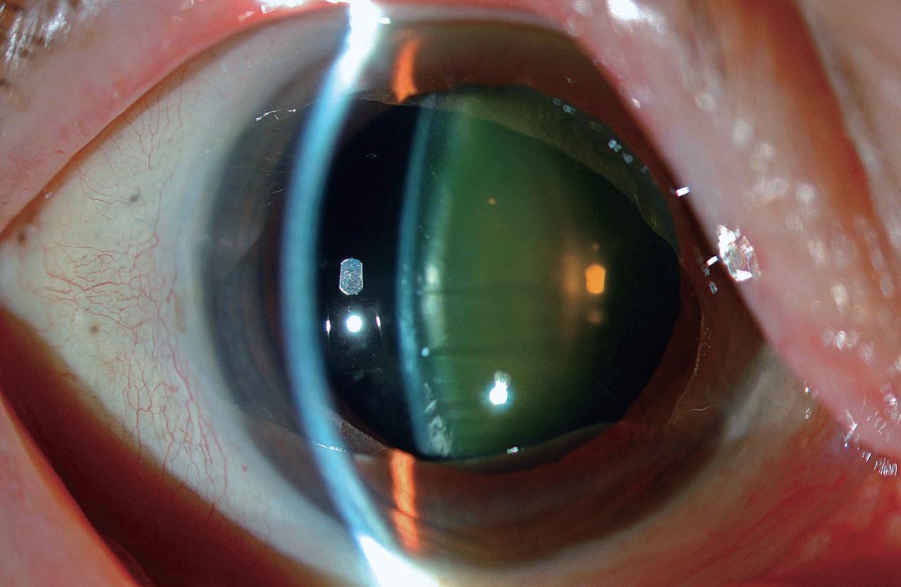 医師国家試験105I75_画像_白内障の前眼部写真