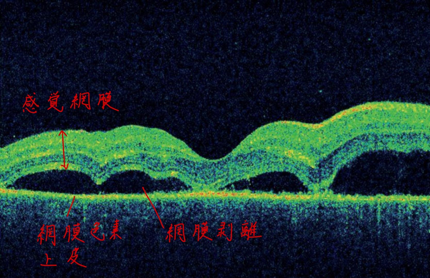 医師国家試験107I48_画像C_原田のOCT_改変