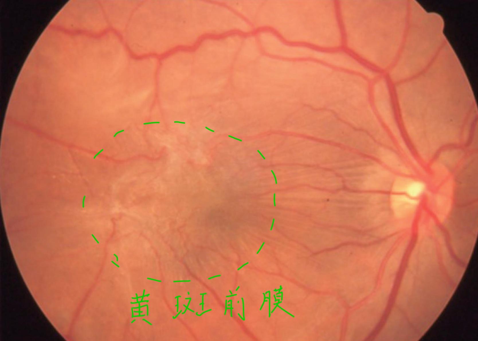 医師国家試験113D59_画像_黄斑上膜の眼底写真_改変