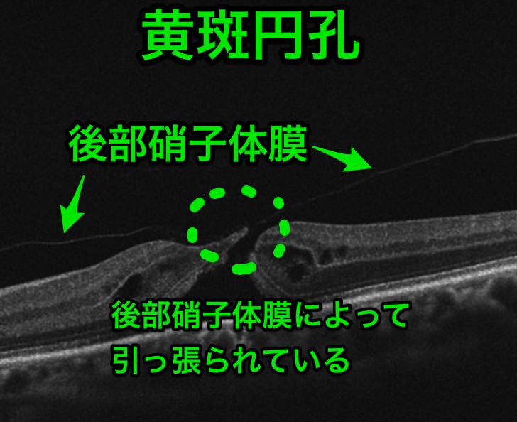 医師国家試験108D38_画像_黄斑円孔のOCT_改変