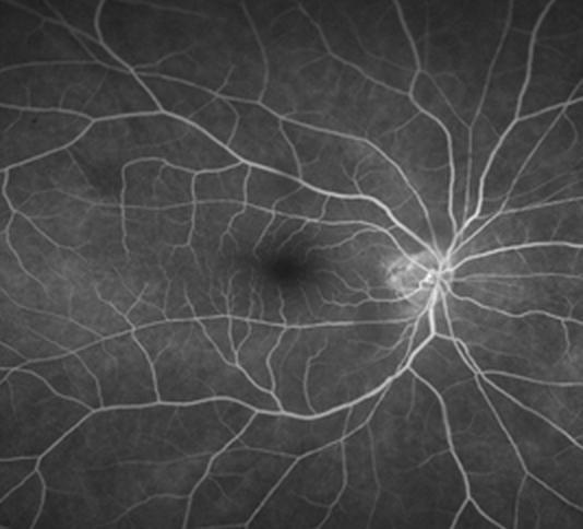 正常眼の造影検査