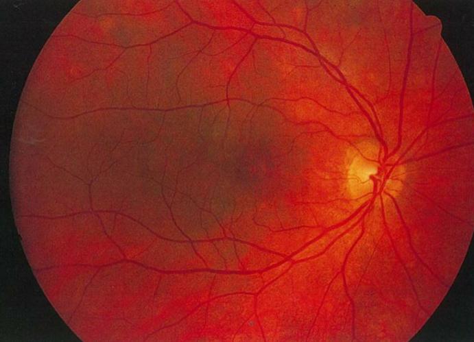 医師国家試験98A7_画像B_原田の眼底写真(夕焼け状眼底)