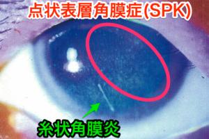 点状表層角膜症_SPK_