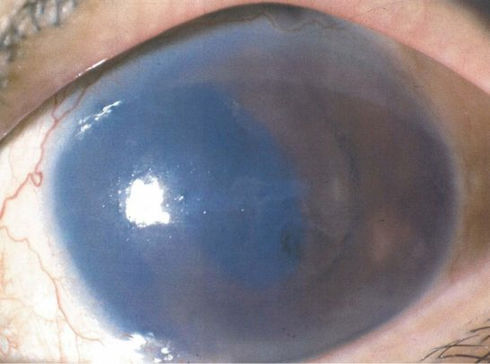 水疱性角膜症