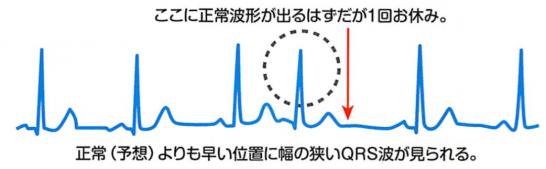 上室期外収縮の心電図