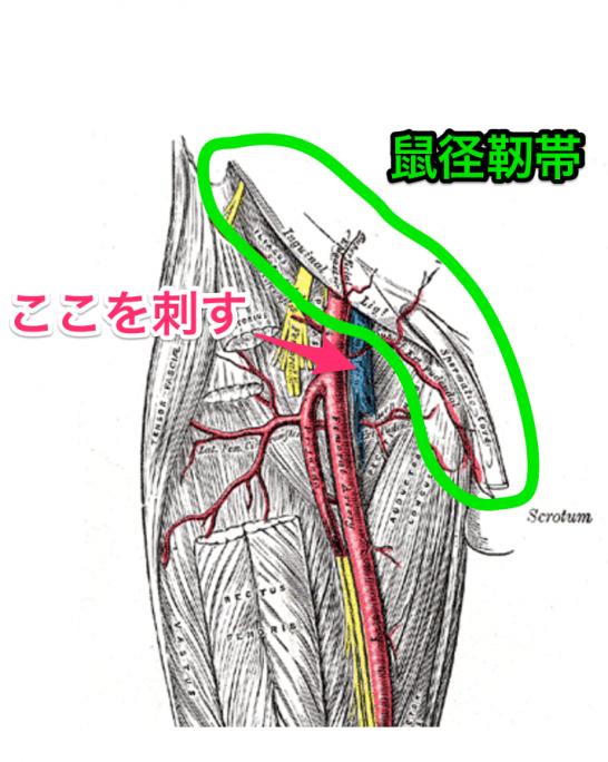 大腿静脈の穿刺部位