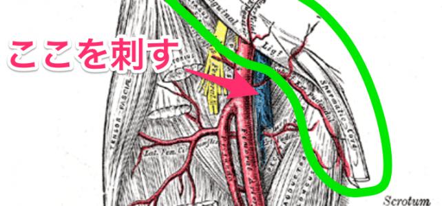 大腿静脈(動脈)の穿刺部位 | 鼠径靭帯より末梢がポイント