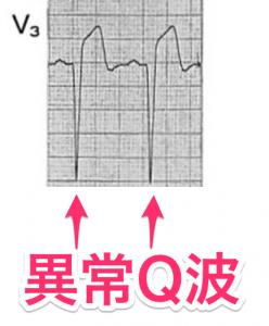 異常Q波の心電図
