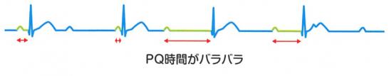 第3度房室ブロックの心電図