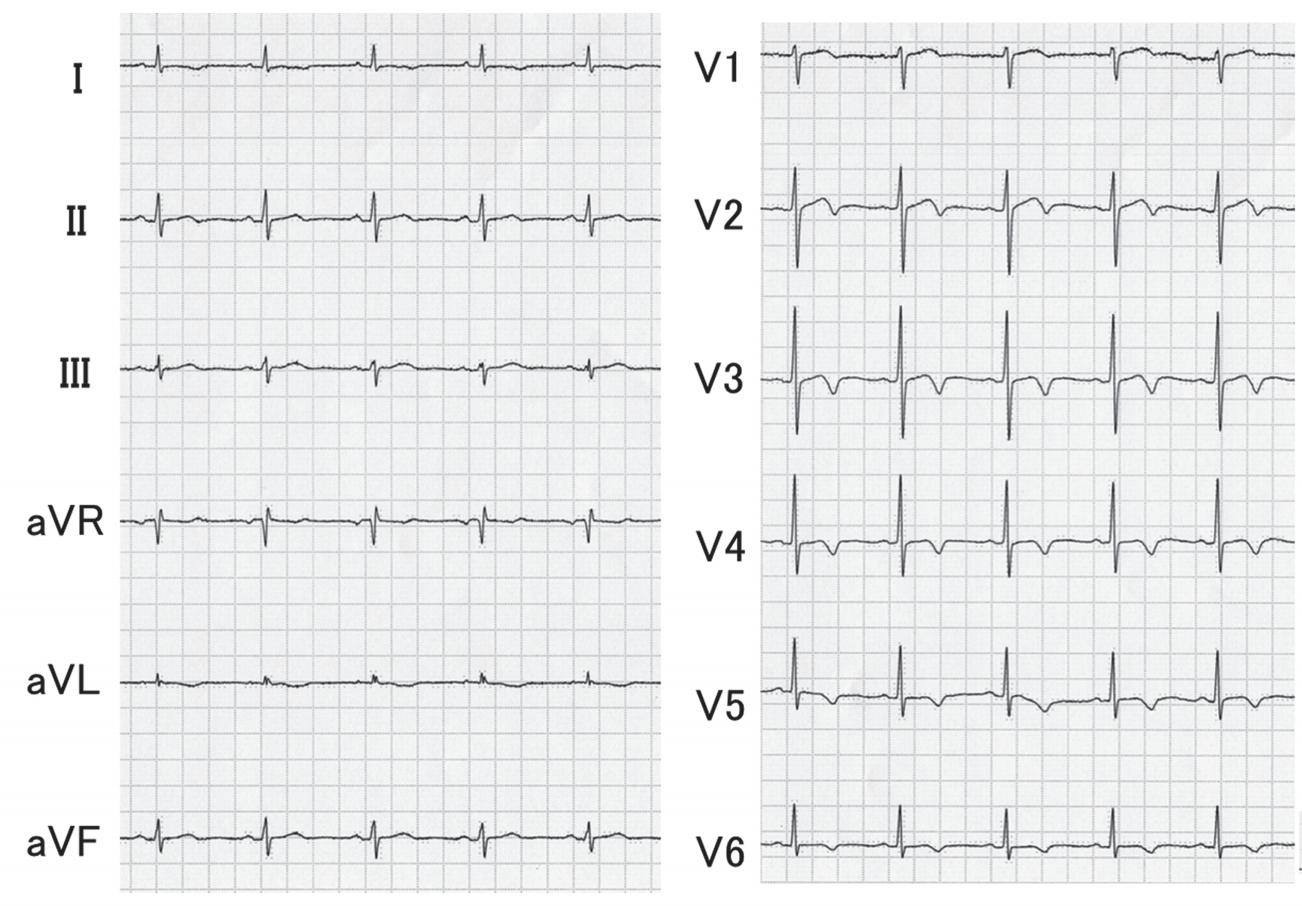 Wellens症候群の心電図