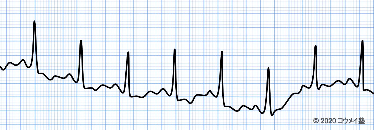 ドリフトの心電図