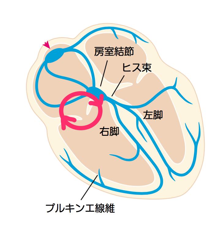 通常型心房粗動_時計回転_