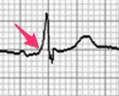 A型WPW症候群の心電図