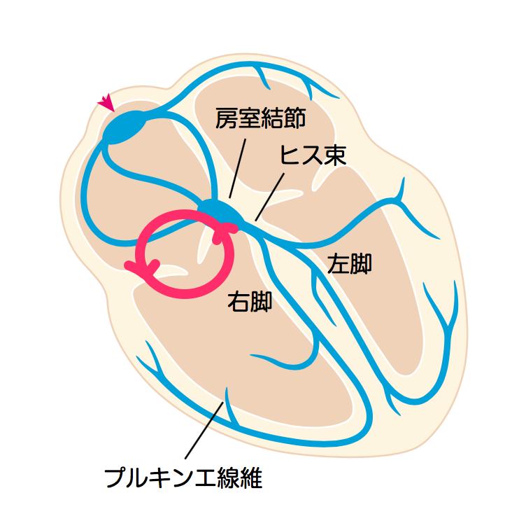 通常型心房粗動_反時計回転_