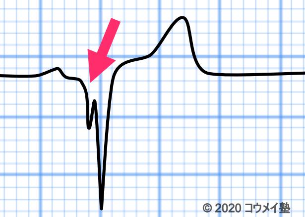 WPW症候群の心電図_C型