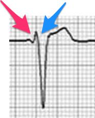 B型WPW症候群の心電図