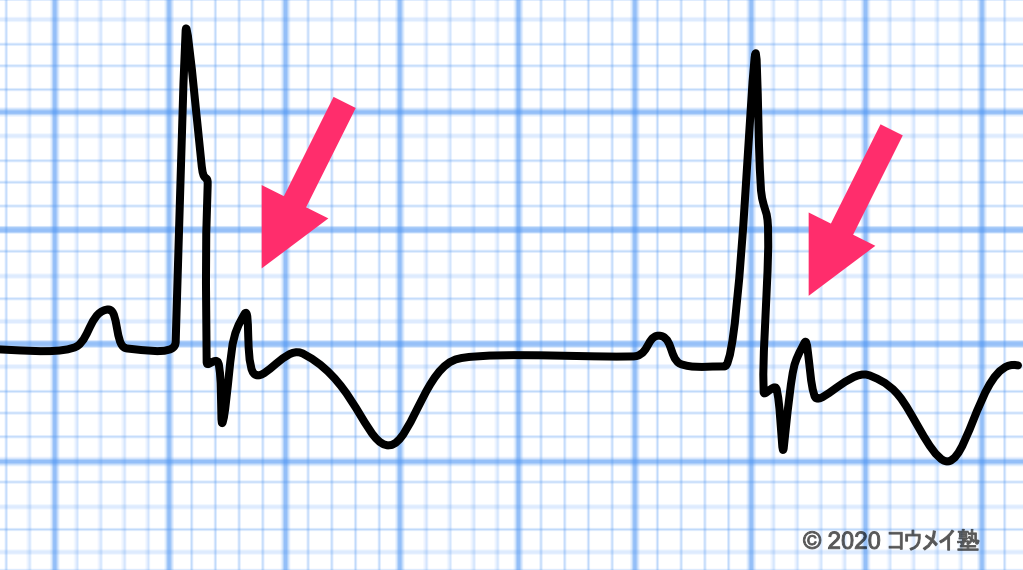 不整脈原性右室心筋症の心電図_イプシロン波