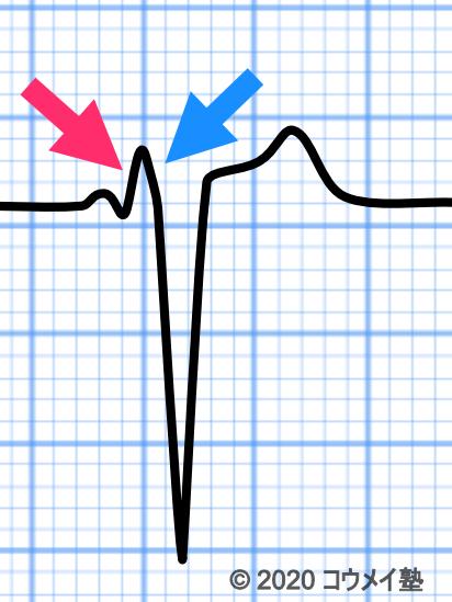 WPW症候群の心電図_B型