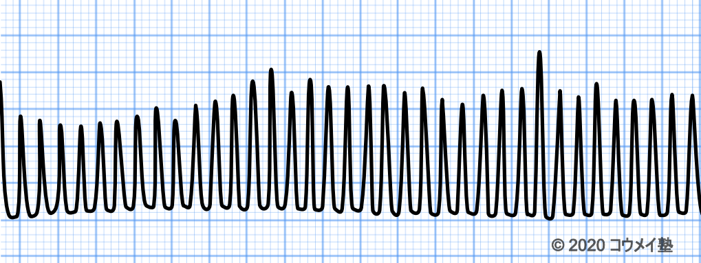 交流障害の心電図