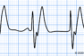 PEAの心電図_オリジナル