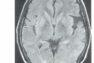 【第3話】とても分かりやすいMRIの話 〜FLAIRはT1?T2?〜