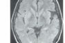 医師国家試験99D103_画像3_MRIのFRAIR